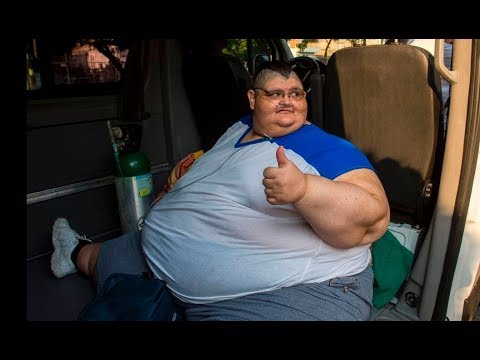 onetime worlds heaviest man has second surgery